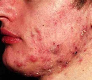 treatments for curing pimples and acne problems